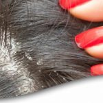 kepekli saç